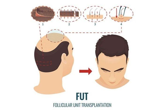 کاشت مو به روش طبیعی